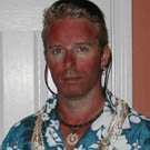 Sunburned Beach Bum Costume